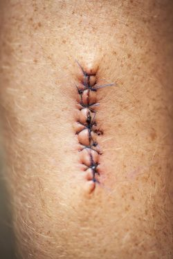idaho falls doctor laceration repair